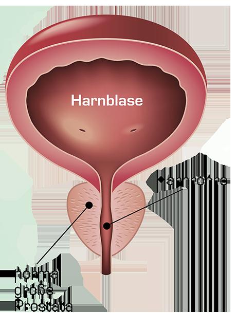 prostata normalgroesse